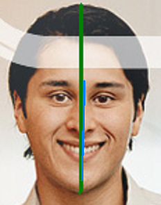 centre line of head does not match centre line of face